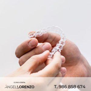 Angel Lorenzo_ortodoncia invisible