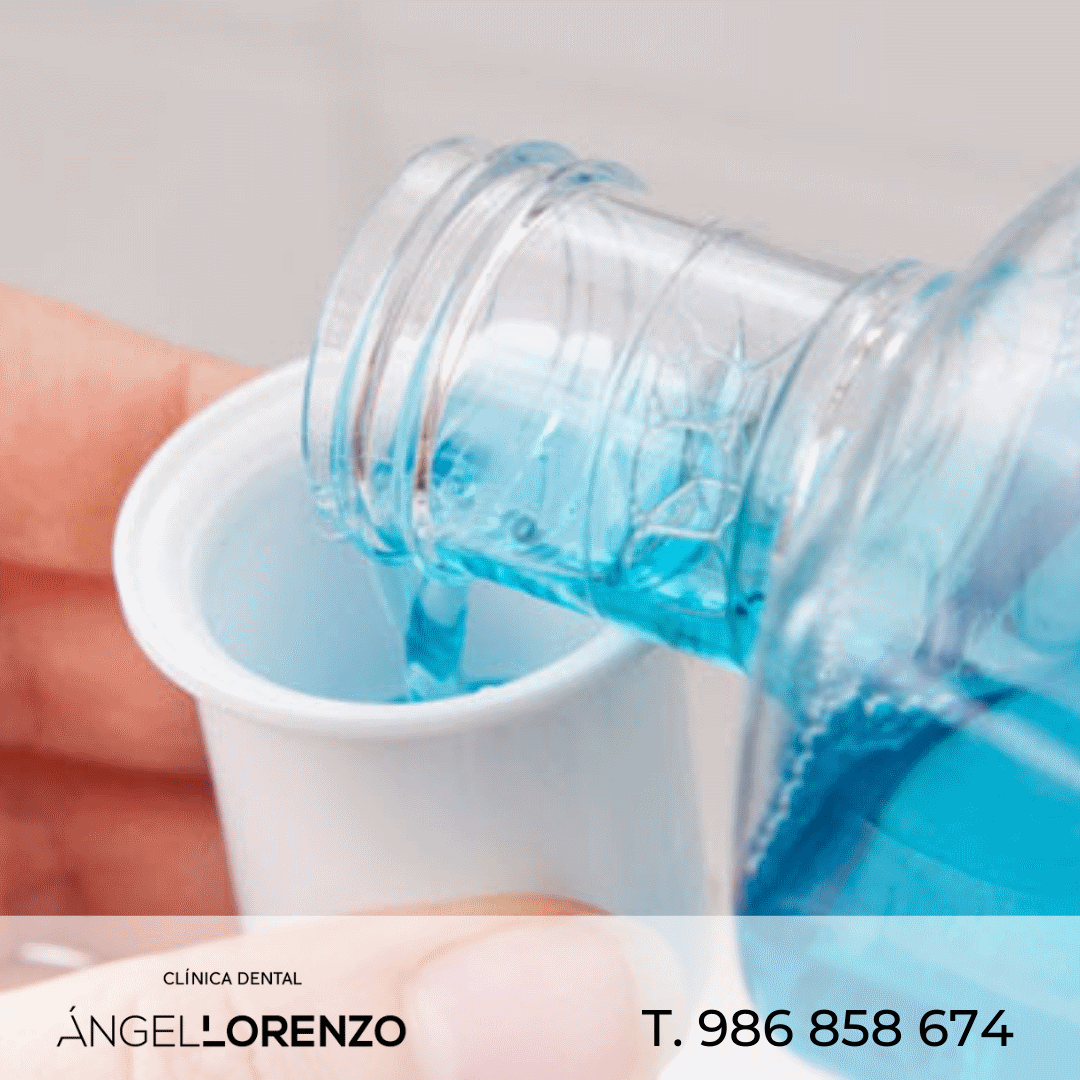 Angel Lorenzo_COLUTORIOS